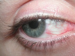 A decision that left at least my eyes looking similar to the infected